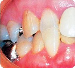 矯正歯科患者写真1