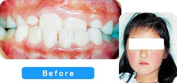 矯正歯科患者写真2