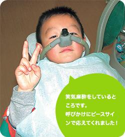 笑気麻酔をしているところの写真。呼びかけにピースサインで応えてくれました。