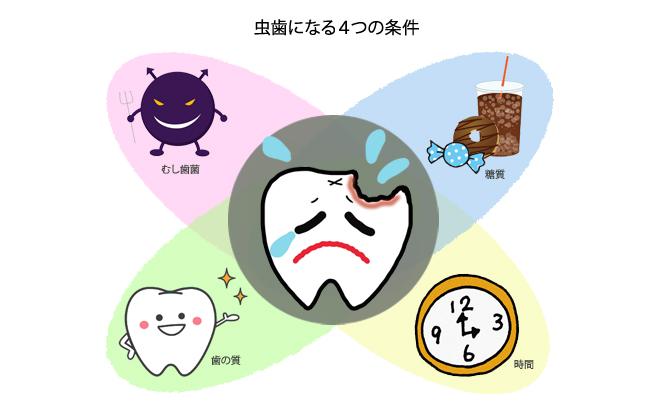 虫歯になる4つの条件